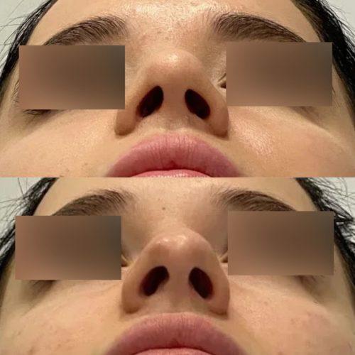 Ринопластика, спустя 1,5 месяца