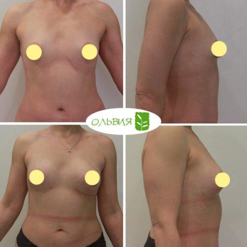 Коррекция ареол, липофилинг тубулярной груди, спустя 1,5 месяца