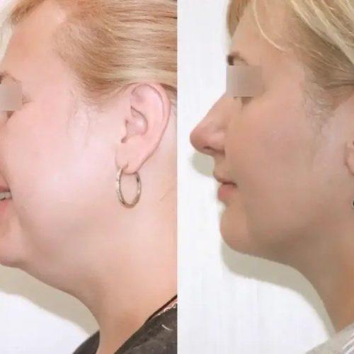 Лазерно-нитевая подтяжка шейно-подбородочного угла, спустя 1,5 месяца