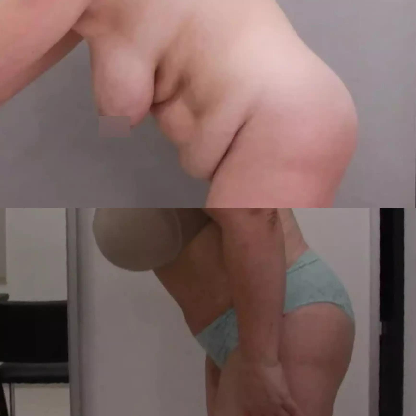 Абдоминопластика, липосакция живота, колен, лобка, поясницы, внутр. поверхности бедер, спустя 1 месяц