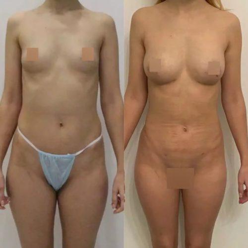Липофилинг груди, липосакция живота, поясницы, галифе, внутр. пов. бедер, спустя 2 недели