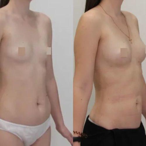 Липофилинг груди, липосакция живота, поясницы, колен, внутр. стороны бедра, голени. спустя 1 месяц