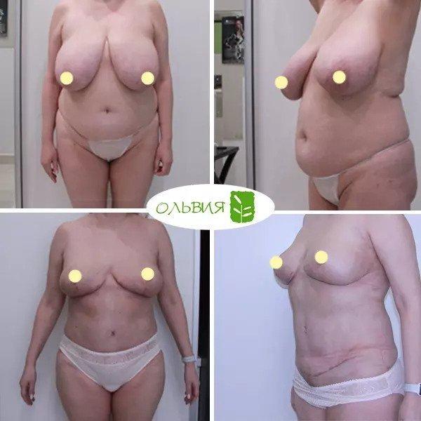 Подтяжка груди, абдоминопластика, липосакция живота, поясницы, спустя 1 месяц