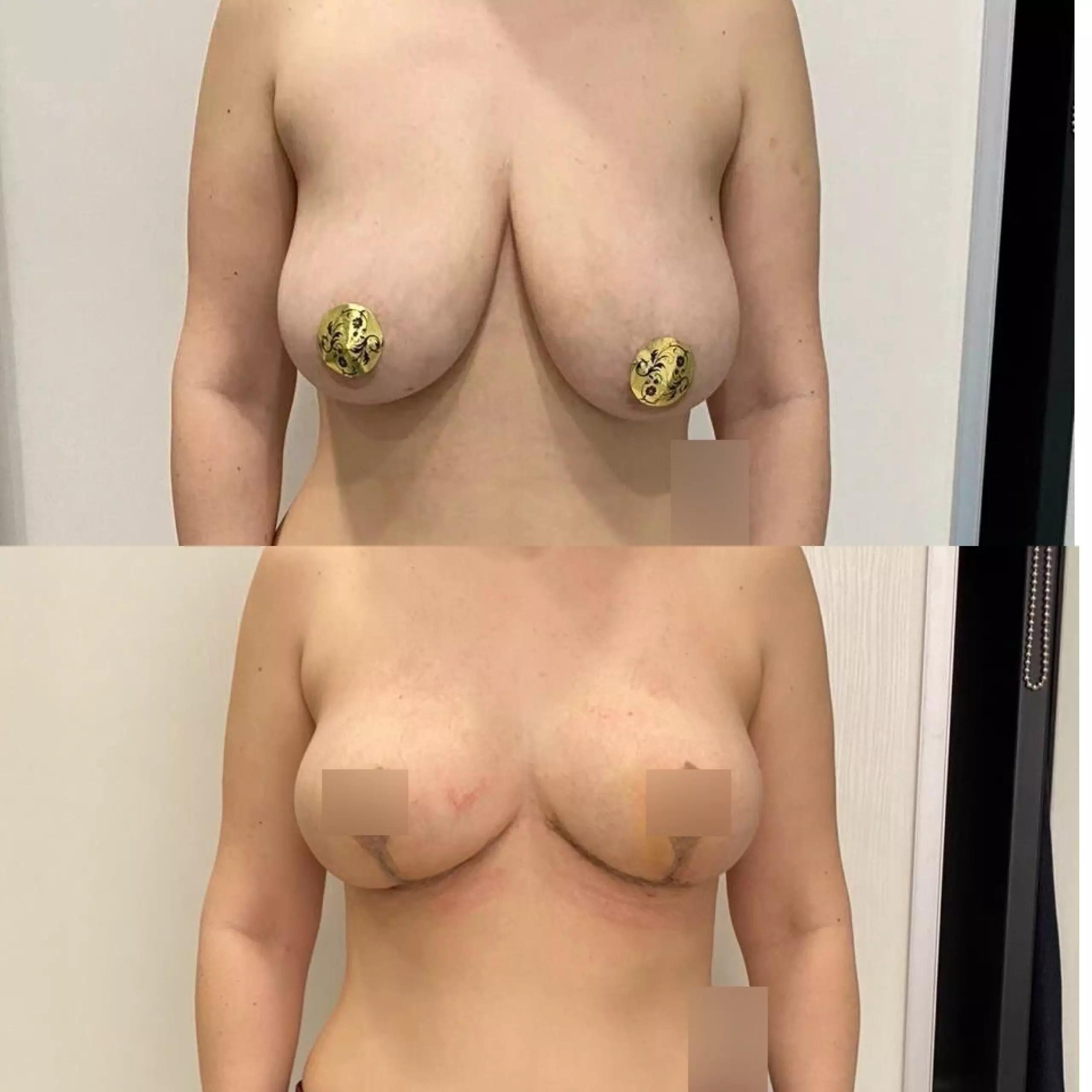 Подтяжка груди, спустя 2 недели