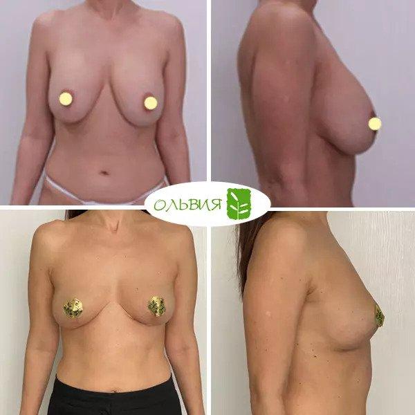 Удаление имплантов с подтяжкой груди, спустя 1 месяц