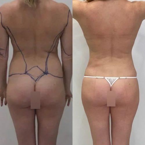 Липосакции живота, поясницы, плеч + липофилинга и подтяжки груди, спустя 1 месяц