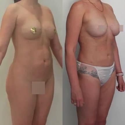 Липосакция живота, поясницы, липофилинг груди, спустя 3,5 года