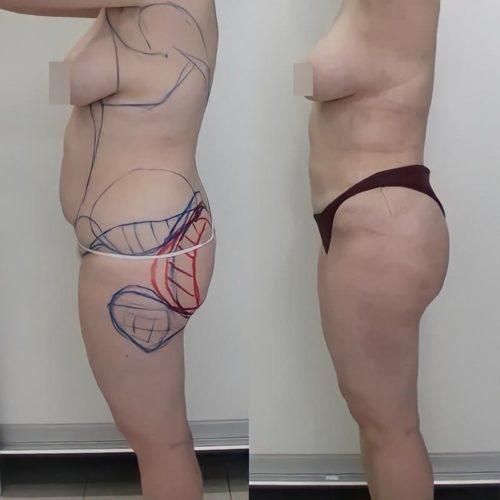 Липосакция живота, поясницы, спины, галифе, липофилинг ягодиц, спустя 1 месяц