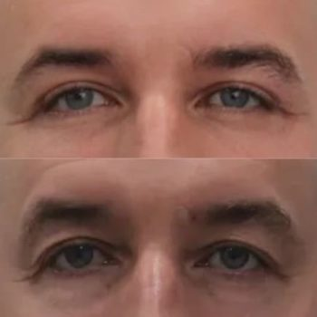 Нижняя и верхняя блефаропластика, липофилинг височно-бровной области, спустя 1,5 месяца