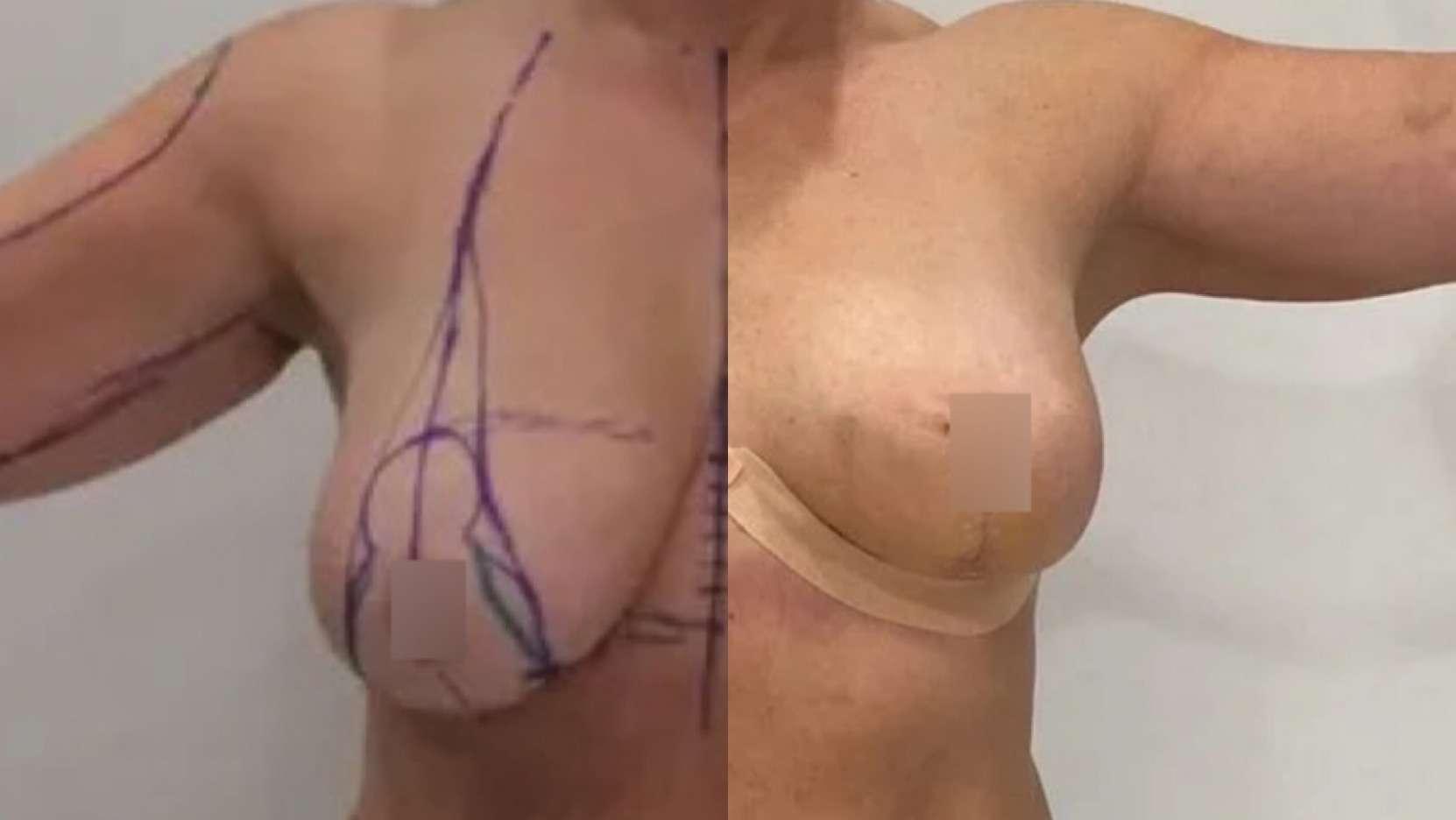 Подтяжка груди, липосакция плеч, спустя 2 недели