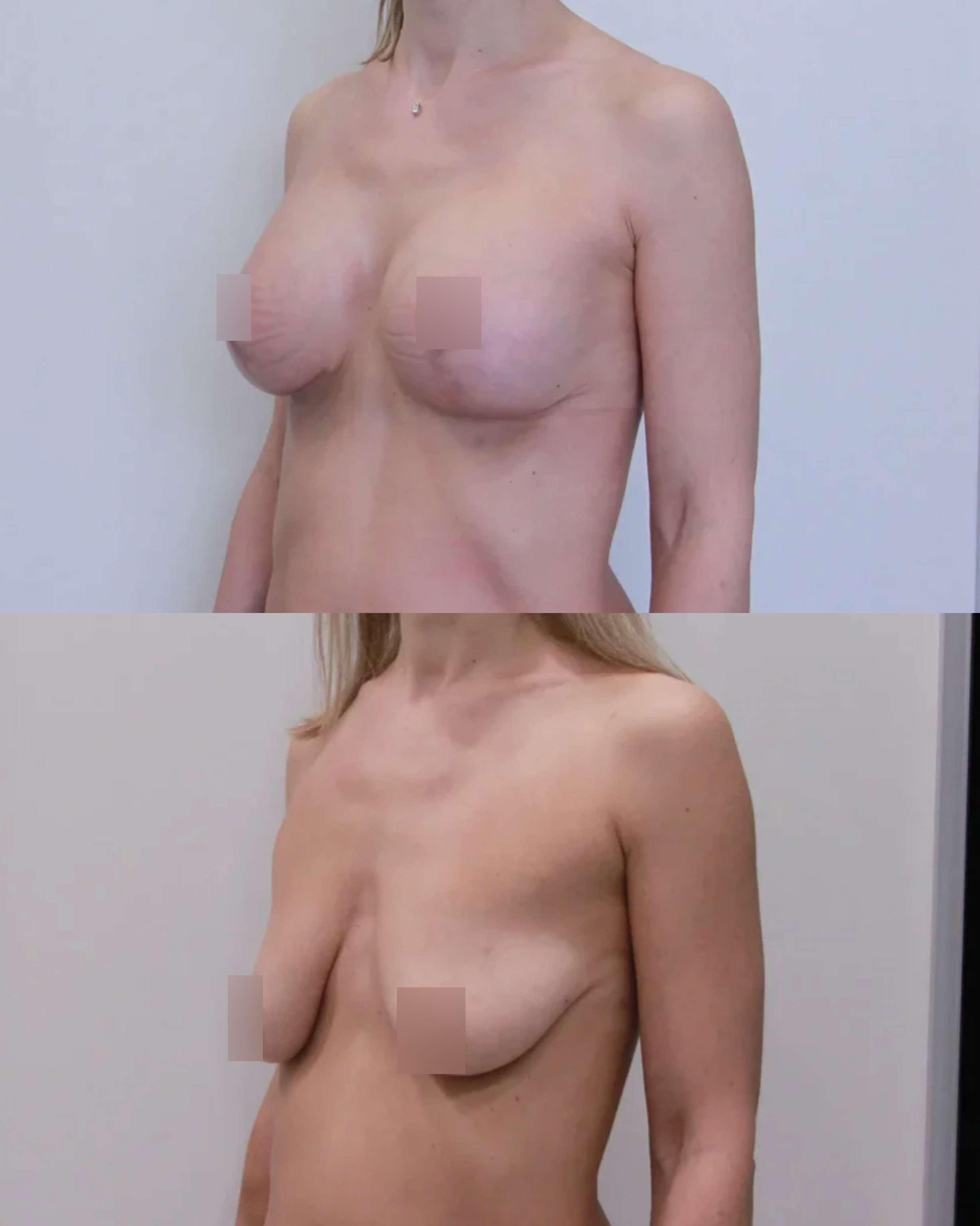 Подтяжка груди с имплантами 335гр, спустя 2 месяца