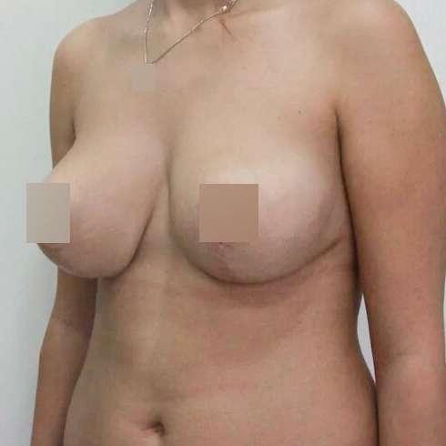 Подтяжка груди, спустя 8 месяцев