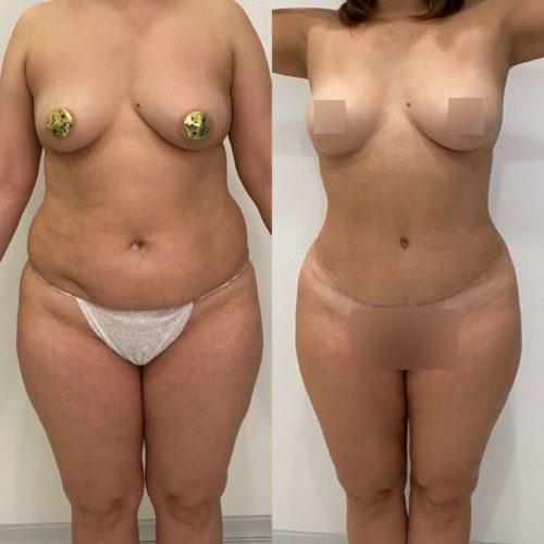 Абдоминопластика, липосакция поясницы, живота, внутренней стороны бедра, колен, липофилинг груди, спустя 6 месяцев