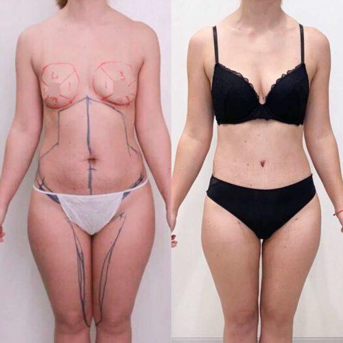 Абдоминопластика, липосакция живота, колен, лобка, внутренней поверхности бедер и липофилинга груди, спустя 1 месяц
