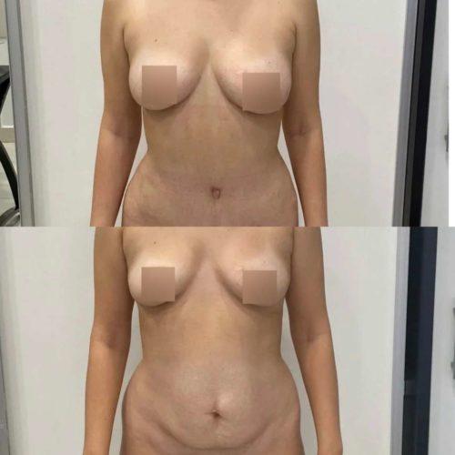 Абдоминопластика, липосакция живота, поясницы, липофилинг груди, спустя 2 месяца