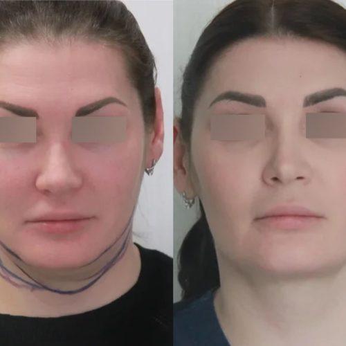 Лазерная подтяжка шейно-подбородочного угла, липосакция шеи, спустя 1 месяц