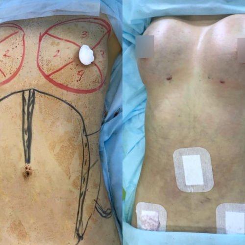 Липофилинг груди ДО и сразу ПОСЛЕ операции
