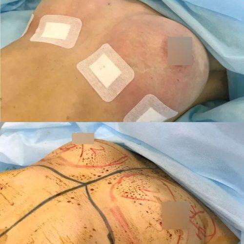 Липофилинг груди ДО и сразу ПОСЛЕ процедуры