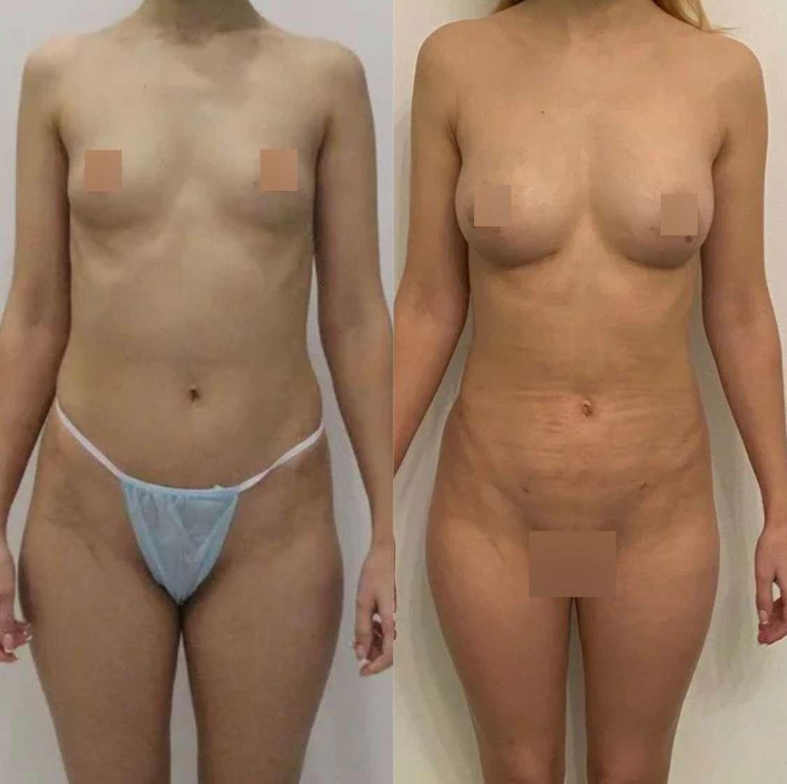 Липофилинг груди, липосакция живота, поясницы, галифе, внутр.пов.бёдер, спустя 2 недели