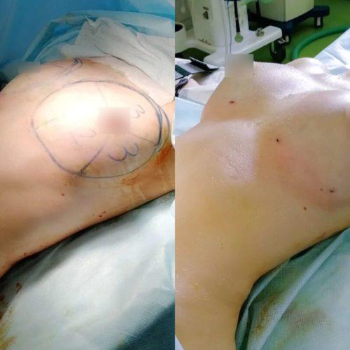 Липофилинг груди, сразу после процедуры