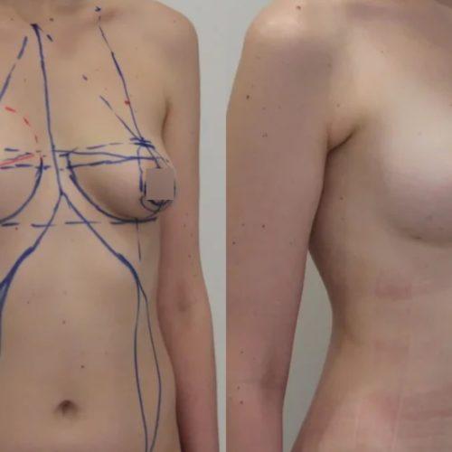 Липофилинг правой груди, подтяжка груди, липосакция живота, спустя 1 месяц