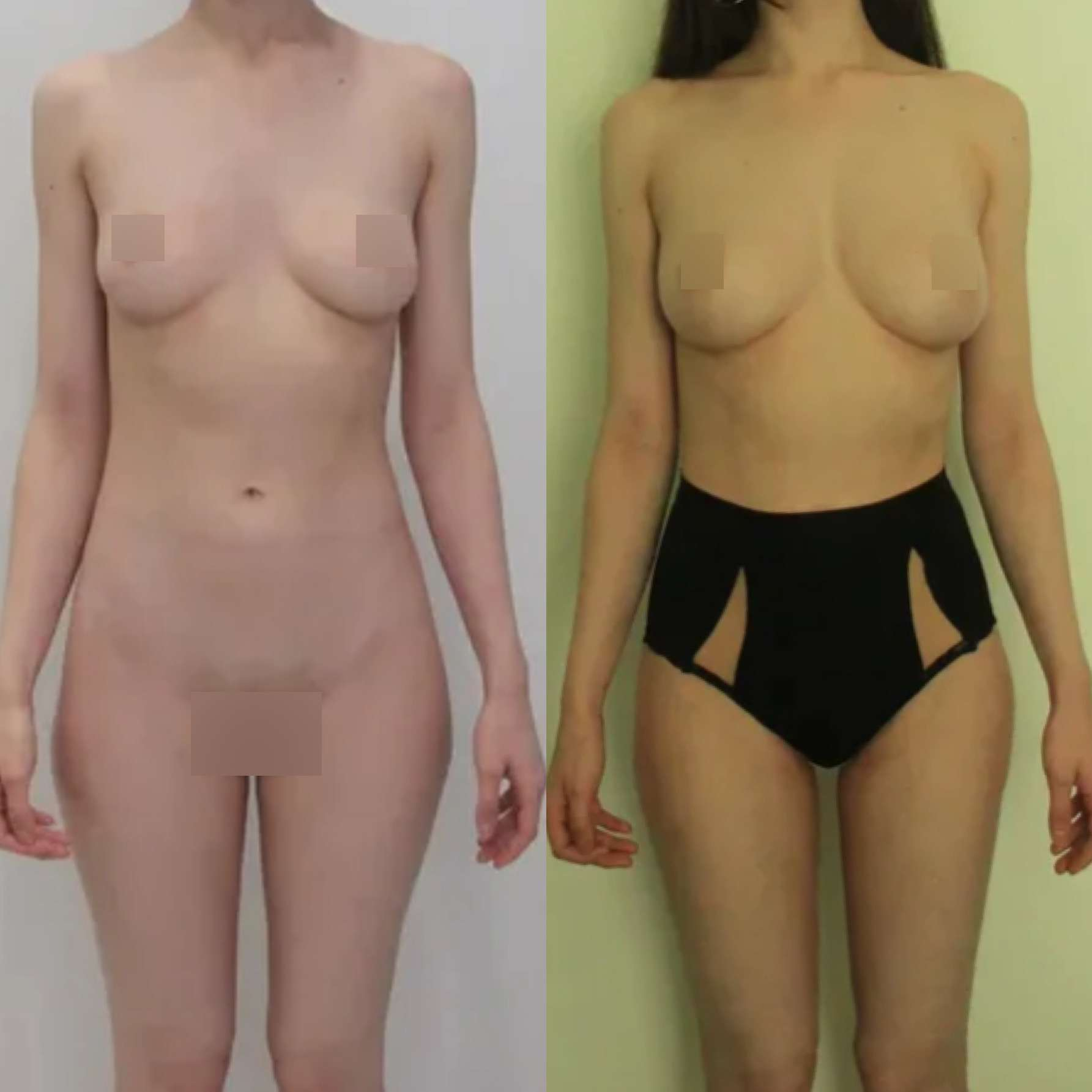 Липосакция галифе, липофилинг груди, спустя 1 месяц