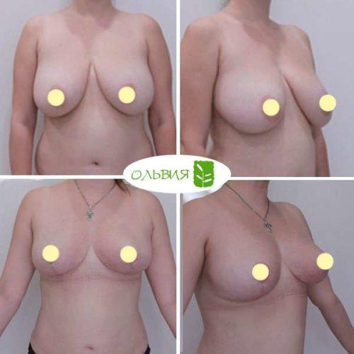 ипосакция подбородка, живота, поясницы, редукция, липофилинг груди, спустя 2 месяца