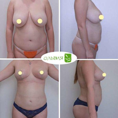 Липосакция подбородка, живота, поясницы, редукция, липофилинг груди, спустя 2 месяца