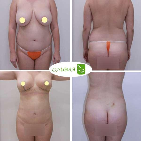 Липосакция подбородка, живота, поясницы, редукция, липофилинг груди, спустя 3 недели
