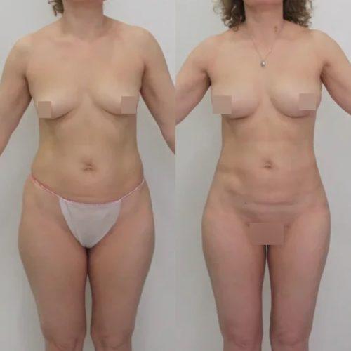 Липосакция поясницы, задней пов. бедер, липофилинг груди, спустя 2 недели