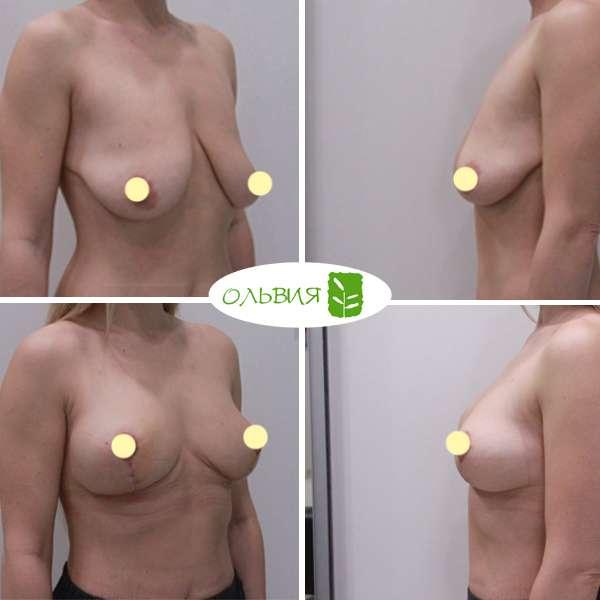 Подтяжка груди, липофилинг груди, липосакция поясницы, колен, спустя 2 недели