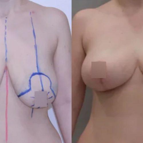 Подтяжка груди, липофилинг груди, спустя 2 месяца