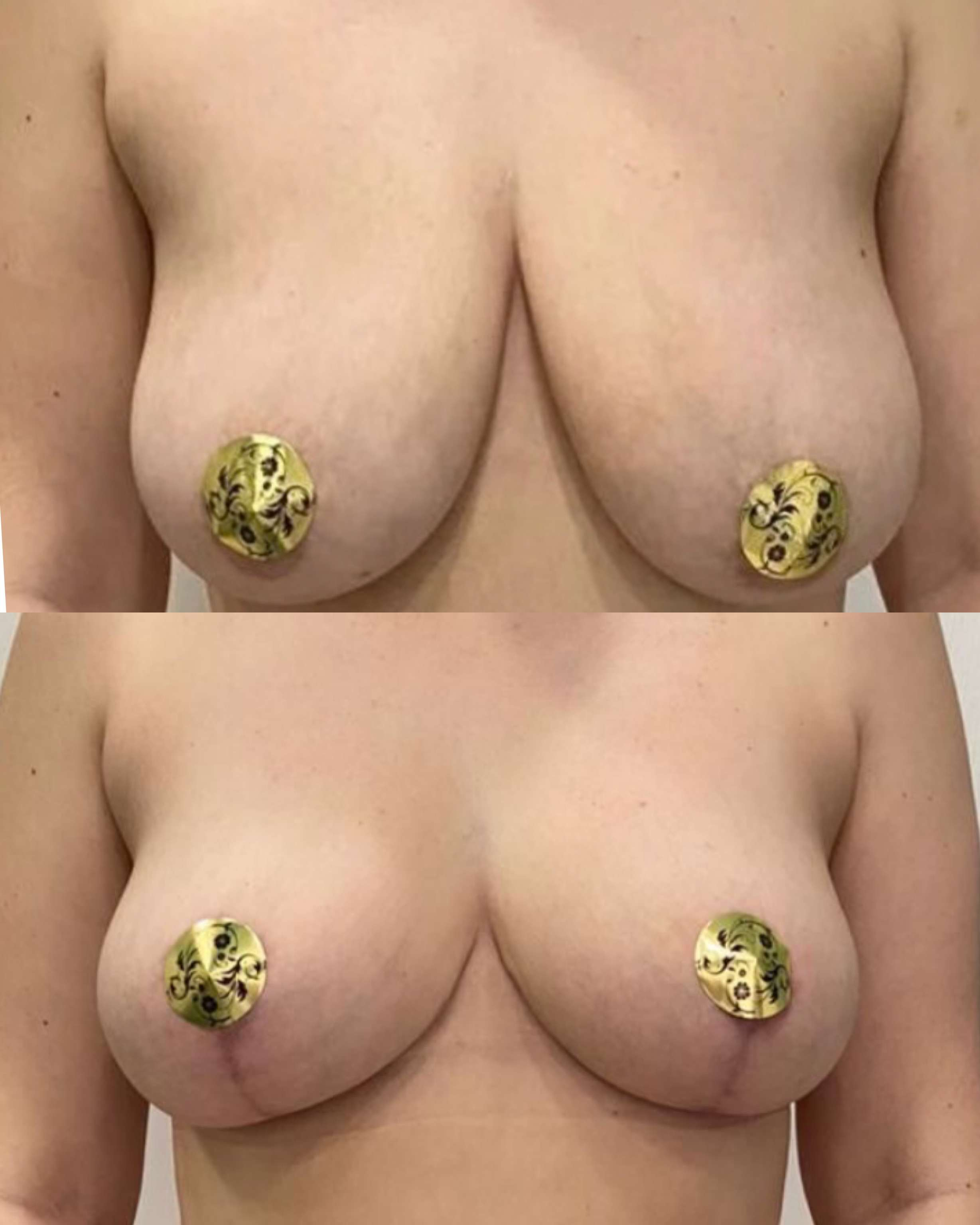 Подтяжка груди с липофилингом груди, спустя 2 месяца