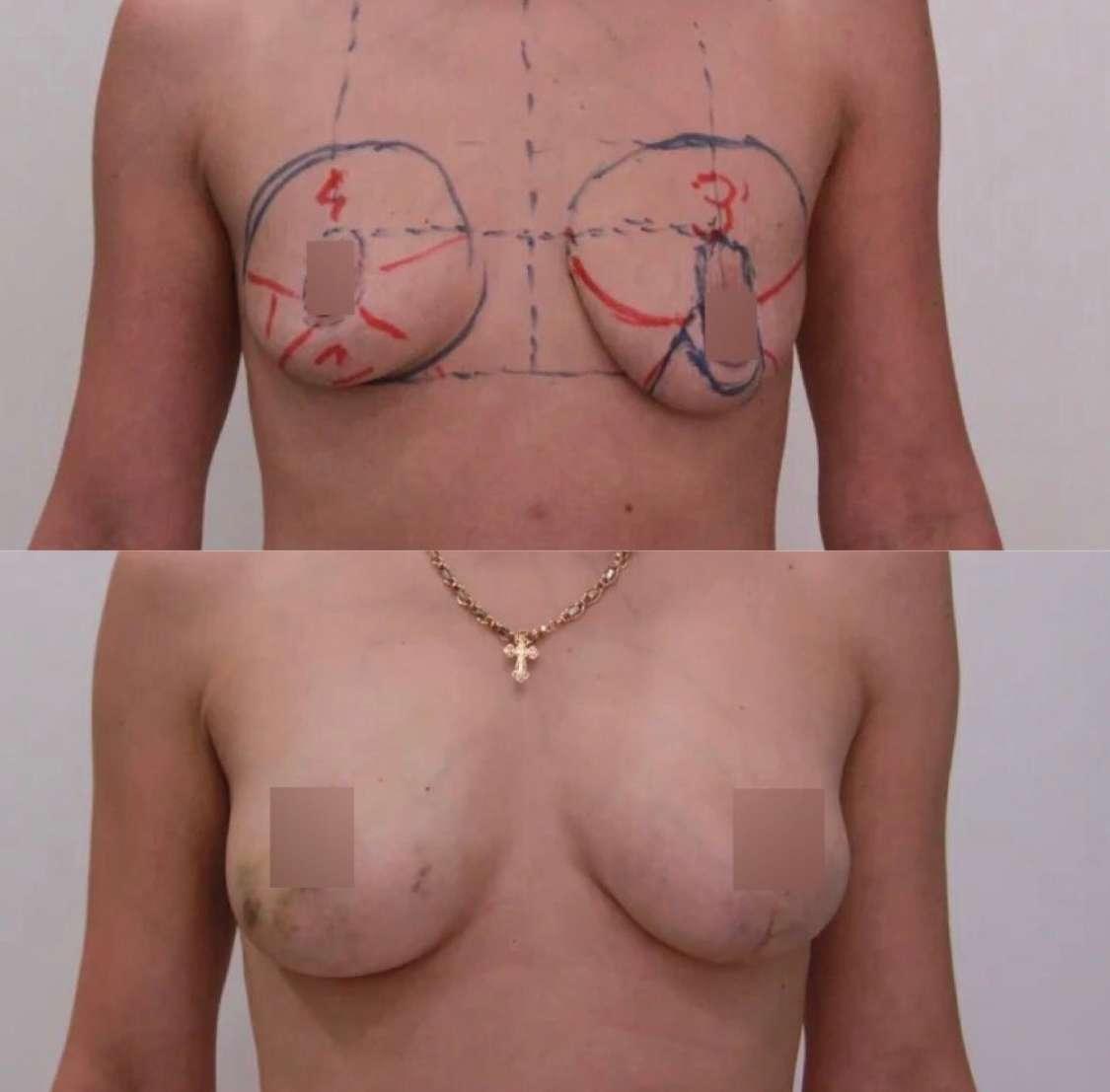 Подтяжка груди с липофилингом, спустя 3 недели