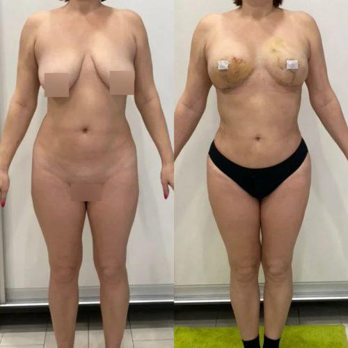 Редукция груди, липофилинг груди, липосакция галифе, поясницы, спустя 2 недели