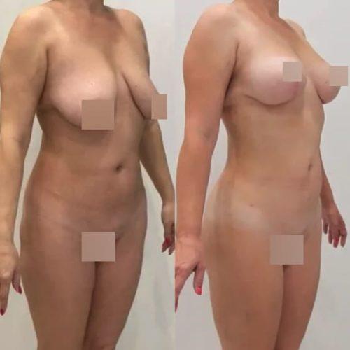 Редукция груди, липофилинг груди, липосакция галифе, поясницы, спустя 2,5 месяца