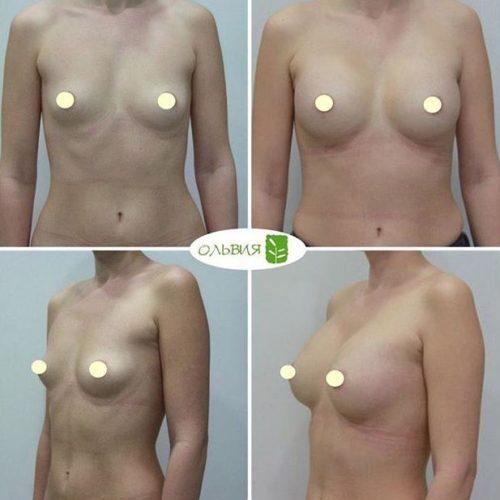 Эндоскопический доступ, анатомические импланты 345гр
