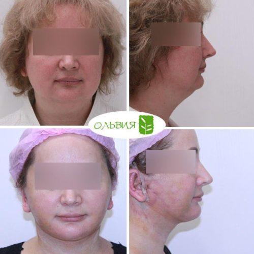 Подтяжка нижней две трети лица и шеи, верхняя блефаропластика, спустя 2 недели