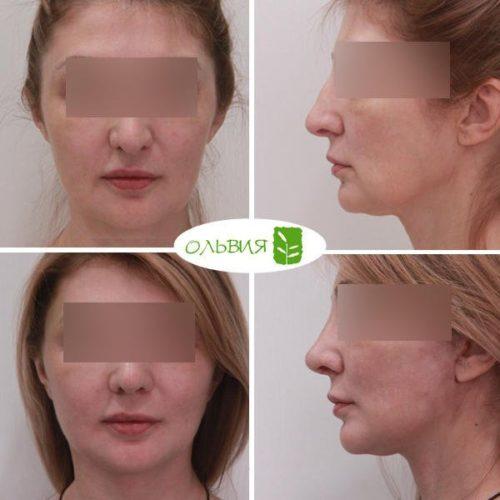 Подтяжка нижней две трети лица, платизмопластика, пластика верхних век, липофилинг носогубных складок, лазерная шлифовка лица, спустя 1 месяц