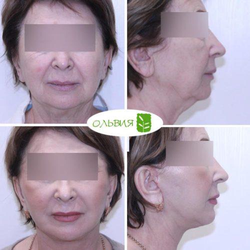 Подтяжка нижней две трети лица, платизмопластика, пластика верхних век, липофилинг носогубн