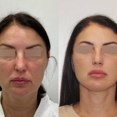 Подтяжка нижней две трети лица и шеи, спустя 3 месяца