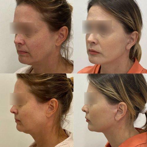 Подтяжка нижней две трети лица и шеи, спустя 1 месяц