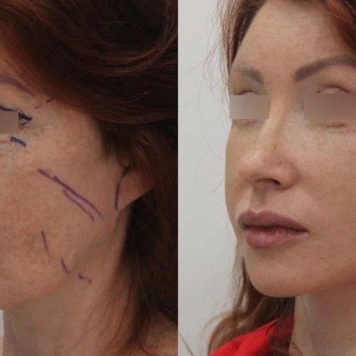 Подтяжка нижней ⅔ лица и шеи, блефаропластика, спустя 2 недели