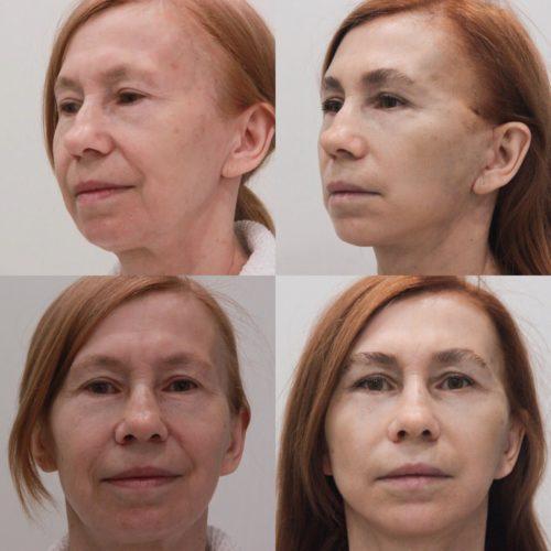 Подтяжка нижней ⅔ лица и шеи, нижняя блефаропластика, спустя 1 месяц
