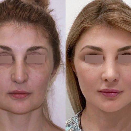 Подтяжки нижней ⅔ лица, ринопластика, блефаропластика, липофилинг висков, спустя 2 месяца
