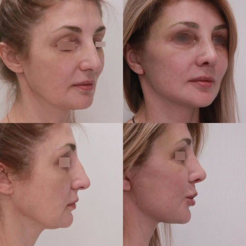 Подтяжки нижней ⅔ лица, ринопластика, блефаропластика, липофилинг висков, спустя 1 месяц