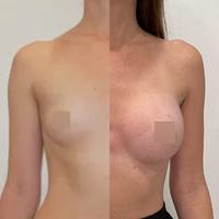 Трансаксиллярный доступ увеличения груди, импланты 325гр, спустя 2 месяца