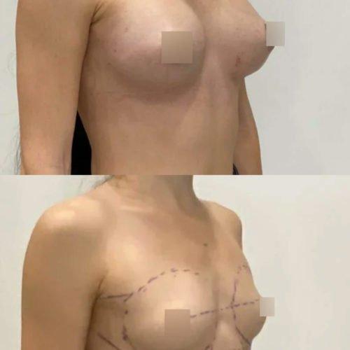 Увеличение груди трансаксиллярным способом, импланты 370гр, спустя 3 недели