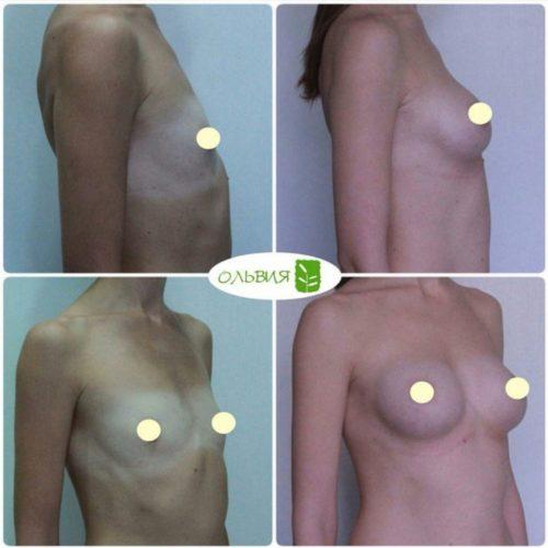 Эндоскопическое увеличение груди, анатомические импланты 300гр, спустя 6 месяцев