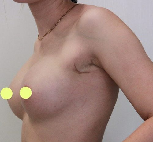 Эндоскопическое увеличение груди, импланты SEBBIN 280гр, спустя 3 месяца